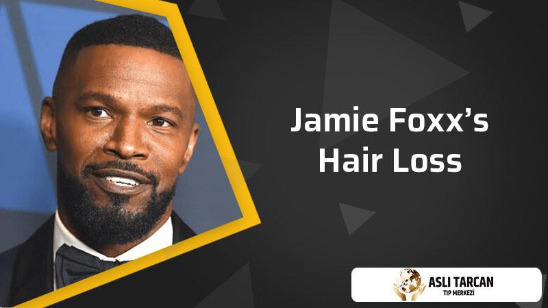Jamie Foxx's Hair Loss