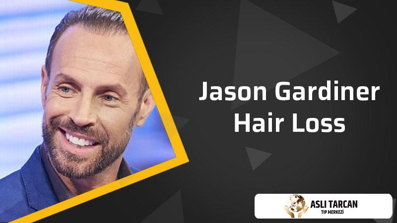 Jason Gardiner Hair Loss