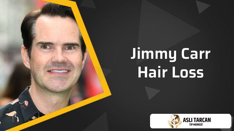 Jimmy carr Hair loss