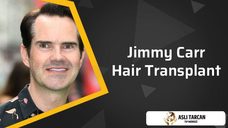 Jimmy Carr Hair Transplant
