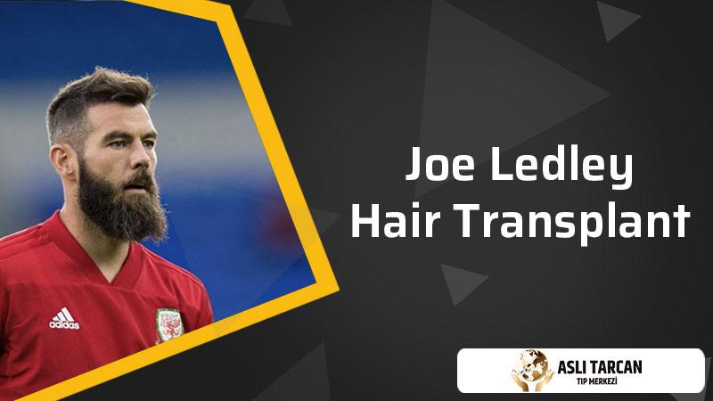 Joe Ledley Hair Transplant