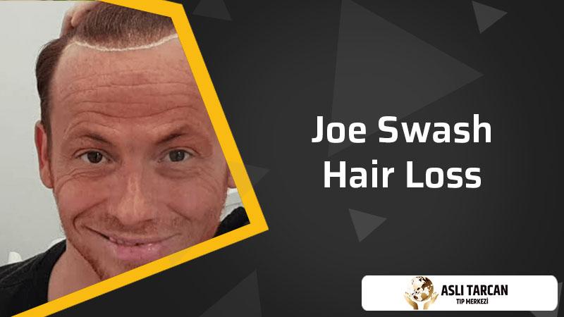 Joe Swash Hair Loss