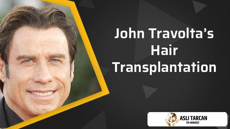 John Travolta's Hair Transplantation