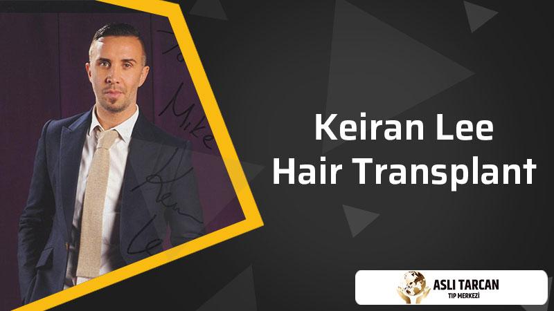 Keiran Lee Hair Transplant