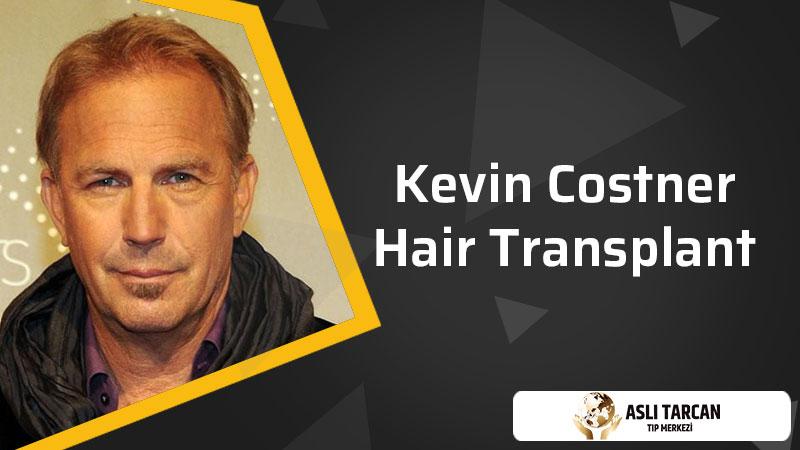 Kevin Costner Hair Transplant