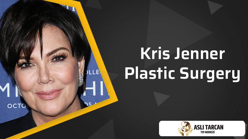 Kris Jenner Plastic Surgery