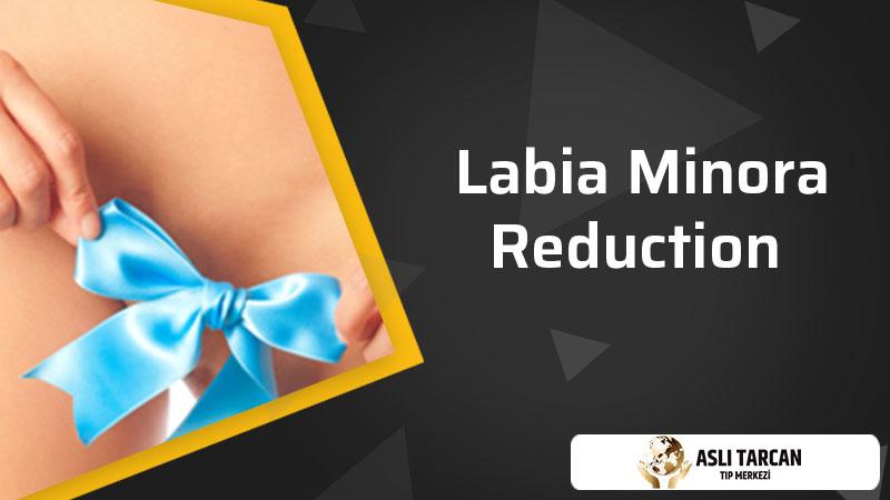 Labia Minora Reduction
