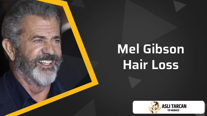 Mel Gibson hair loss