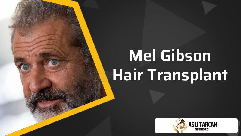 Mel Gibson Hair Transplant