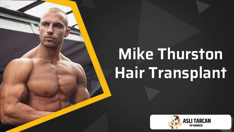 Mike Thurston Hair Transplant