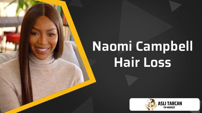Naomi Campbell Hair Loss