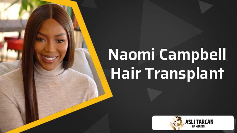 Naomi Campbell Hair Transplant