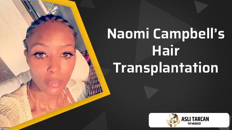 Naomi Campbell's Hair Transplantation