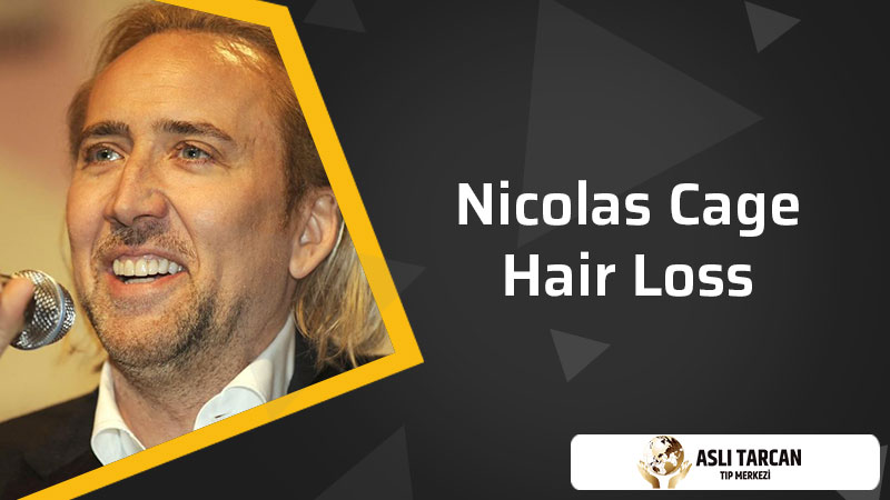 Nicolas Cage Hair Loss