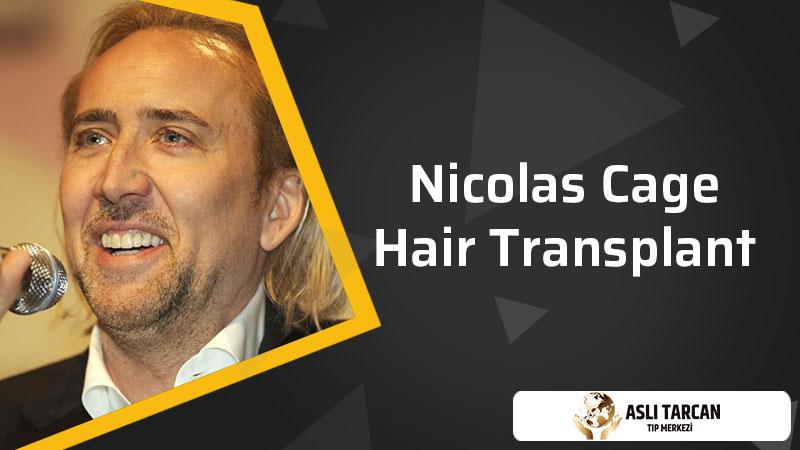 Nicolas Cage Hair Transplant