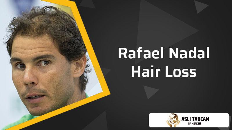 Rafael Nadal Hair Loss