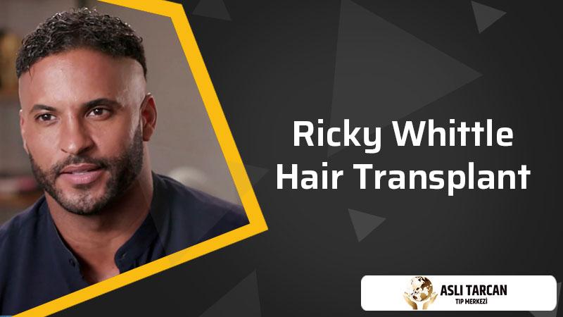 Ricky Whittle Hair Transplant