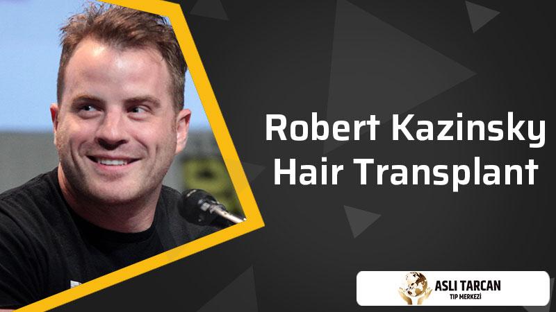 Robert Kazinsky Hair Transplant