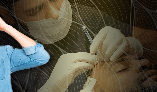 Sapphire FUE Method Hair Transplant
