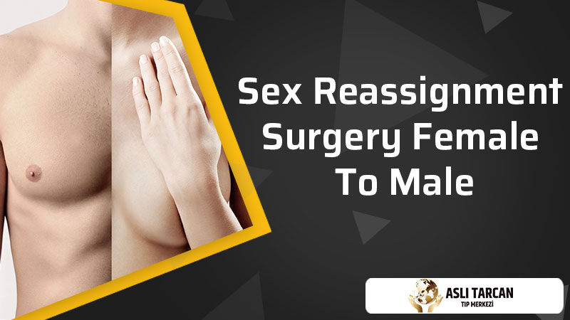 Sex Reassignment Surgery Female To Male