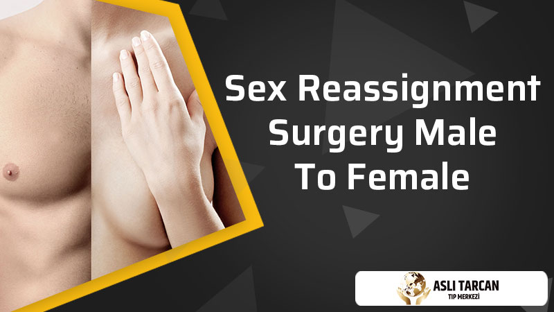 Sex Reassignment Surgery Male To Female