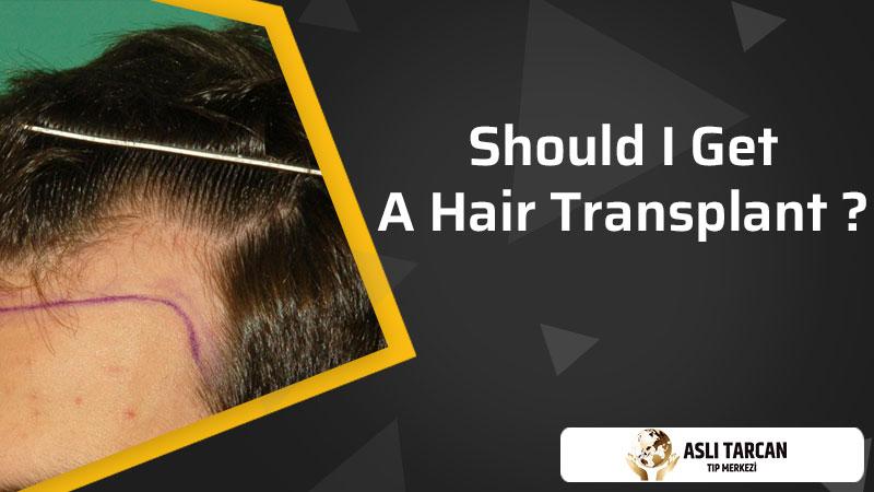 Should I Get A Hair Transplant