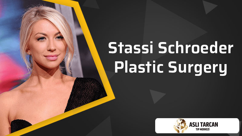 Stassi Schroeder Plastic Surgery