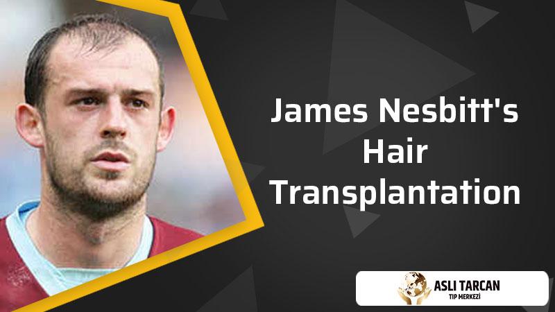 Steven Fletcher's Hair Transplantation