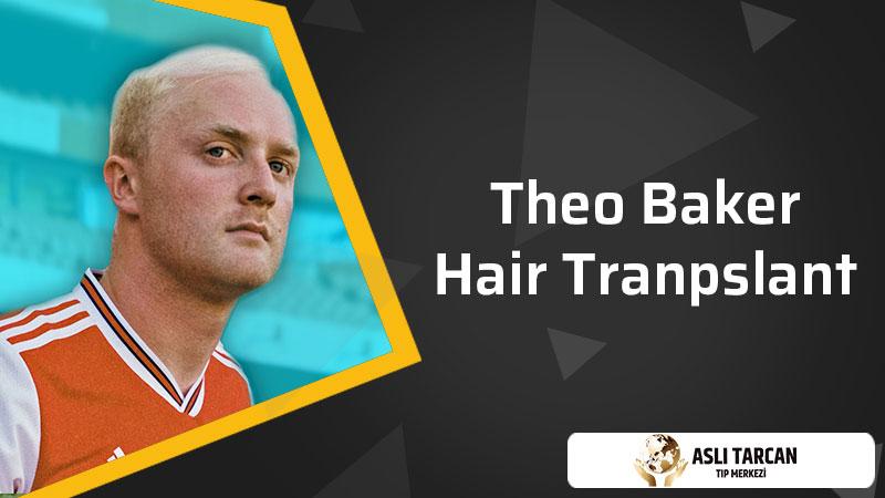 Theo Baker Hair Transplant