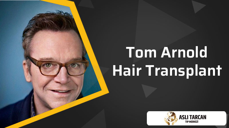 Tom Arnold Hair Transplant