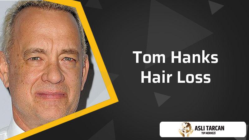 Tom Hanks hair loss