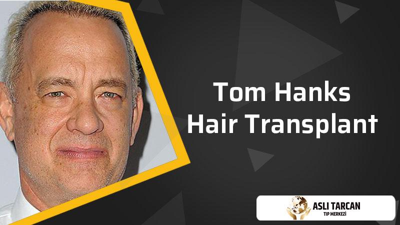 Tom Hanks Hair Transplant