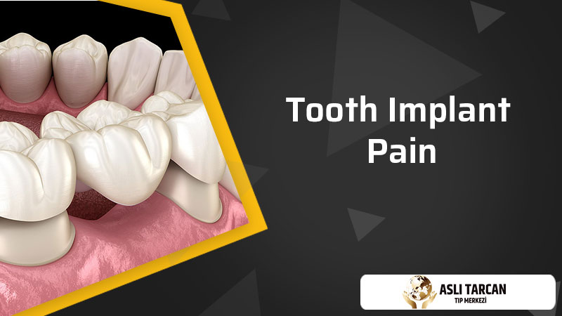 Tooth Implant Pain