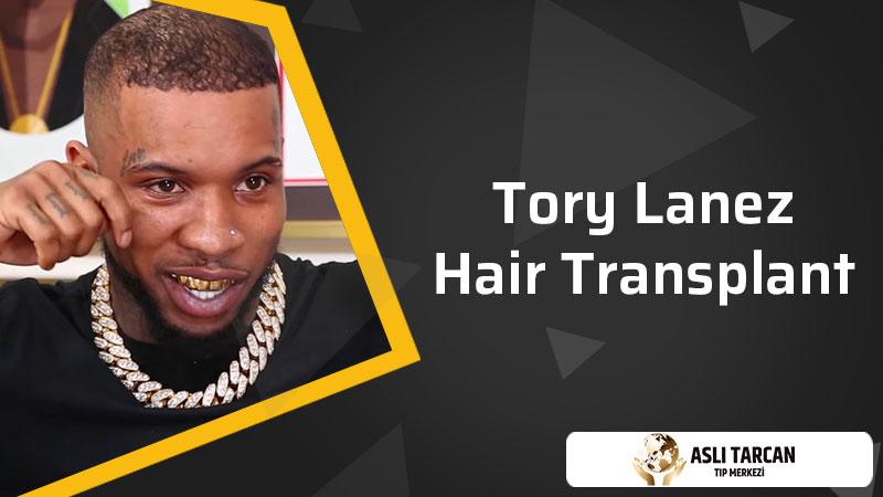 Tory Lanez Hair Transplant