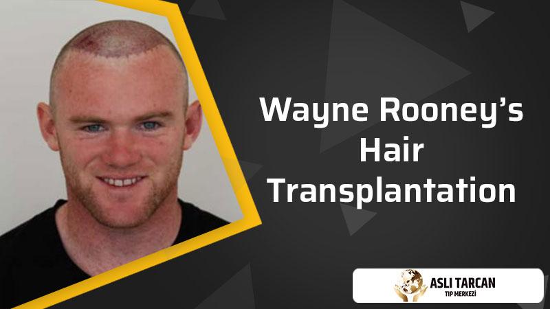 Wayne Rooney's Hair Transplantation
