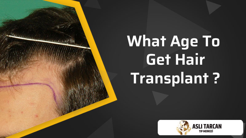 What Age To Get Hair Transplant