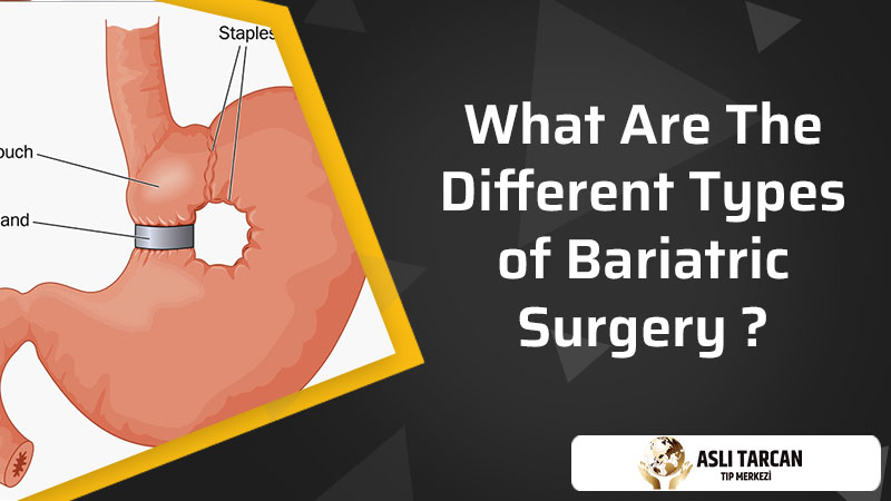What are the different types of bariatric surgery