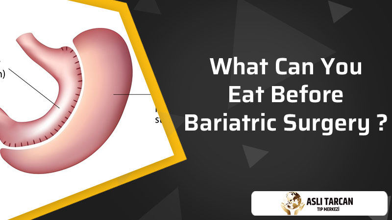 What Can You Eat Before Bariatric Surgery