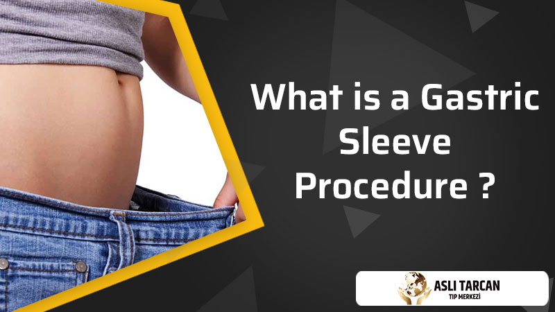 What is a Gastric Sleeve Procedure