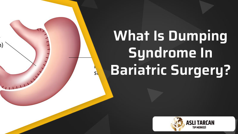 What Is Dumping Syndrome In Bariatric Surgery?