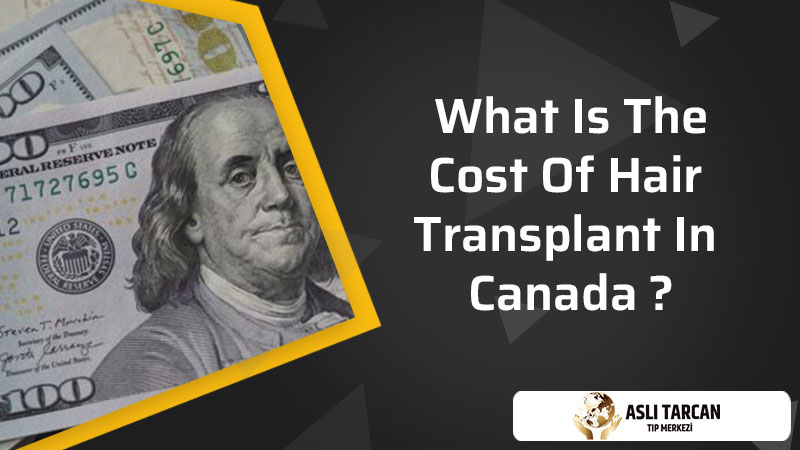 what is the cost of hair transplant in Canada