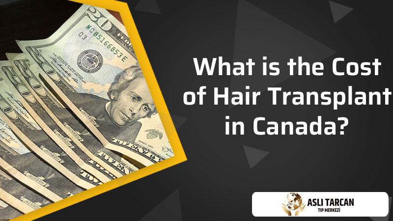 What is the cost of hair transplant in Canada?