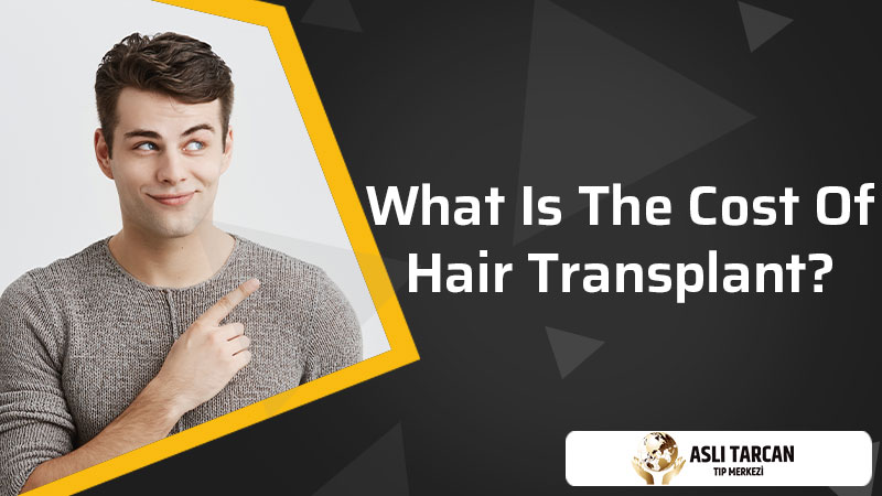 What Is The Cost of Hair Transplant?