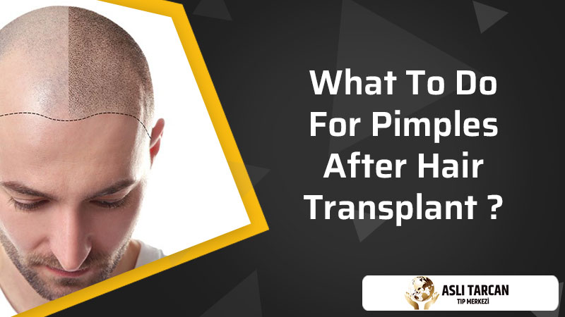What To Do For Pimples After Hair Transplant