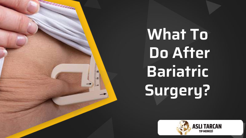 What To Know About Bariatric Surgery