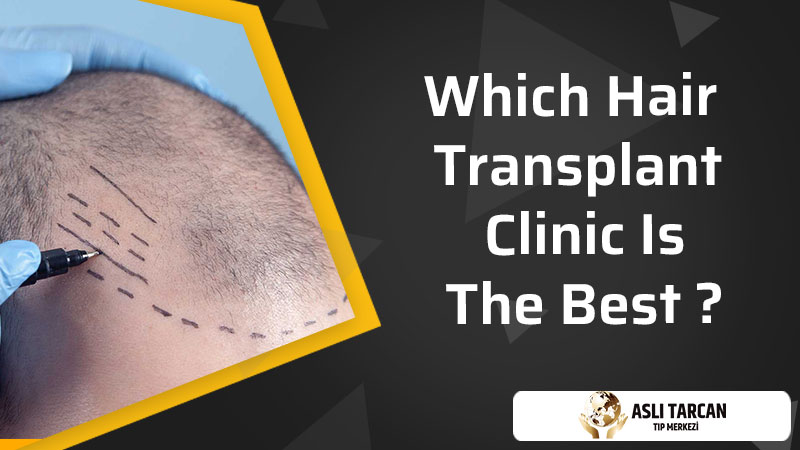 Which Hair Transplant Clinic Is The Best