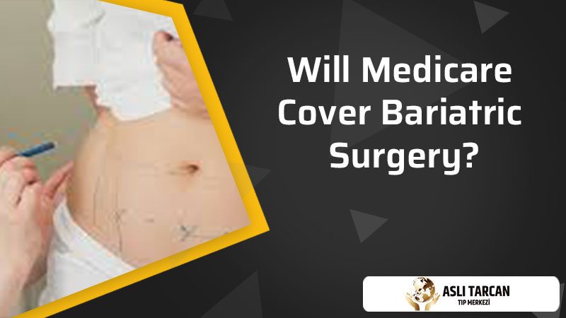 Will Medicare Cover Bariatric Surgery?