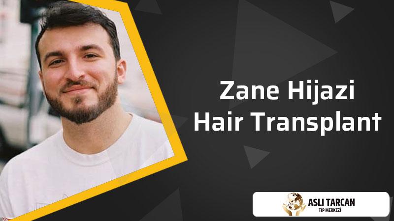 Zane Hijazi Hair Transplant