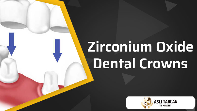 Zirconium Oxide Dental Crowns